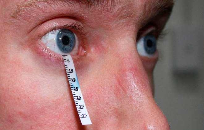 Тест Ширмера для определения количества слезной жидкости