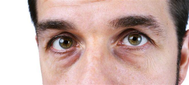 Отеки под глазами у мужчины