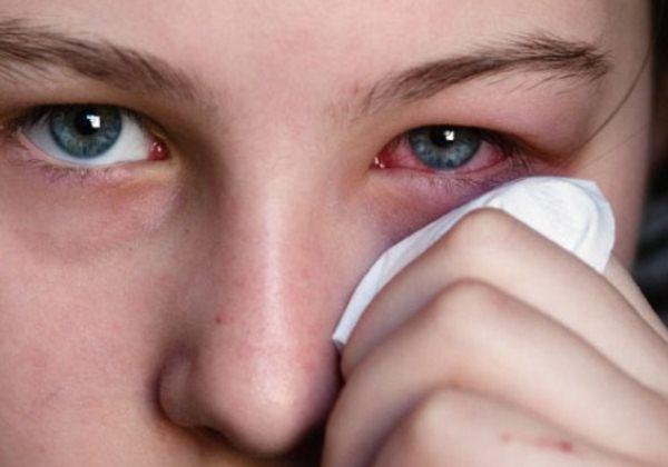 Опухший глаз при кератите