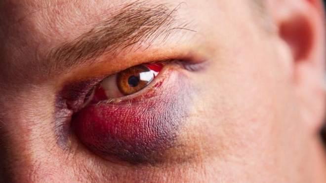 Опухший глаз после травмы