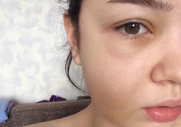 Опухший глаз при флюсе