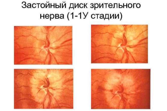 Стадии развития застойного отека диска зрительного нерва