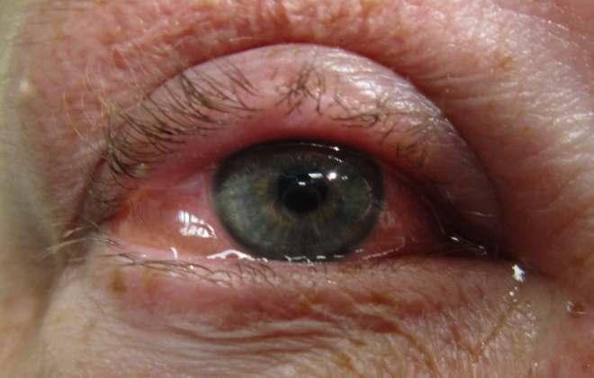Отек роговицы глаза после операции