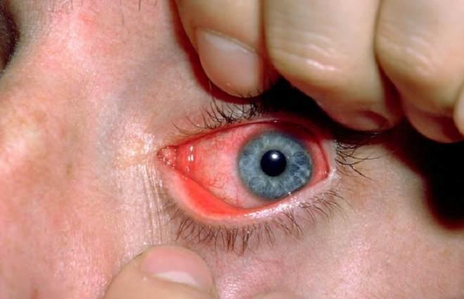 Инфекционное поражение глаза
