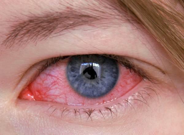 Заболевание глаза кератит