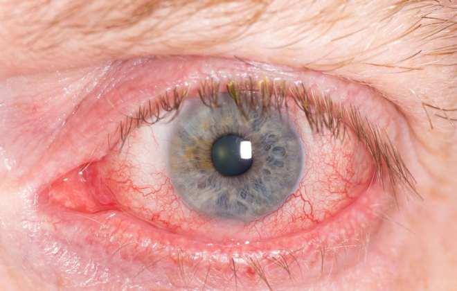 Отек и покраснение глаза при повышенном внутричерепном давлении