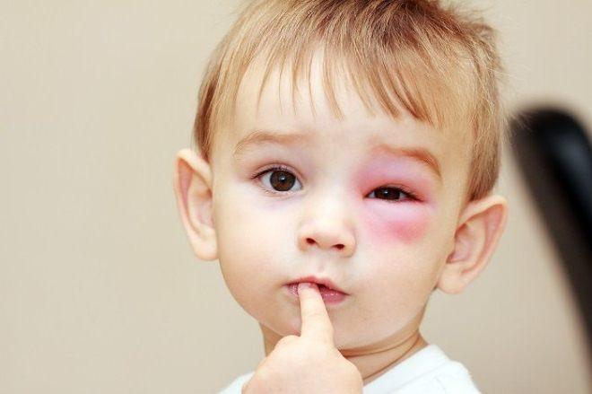 Опухший глаз при аллергии