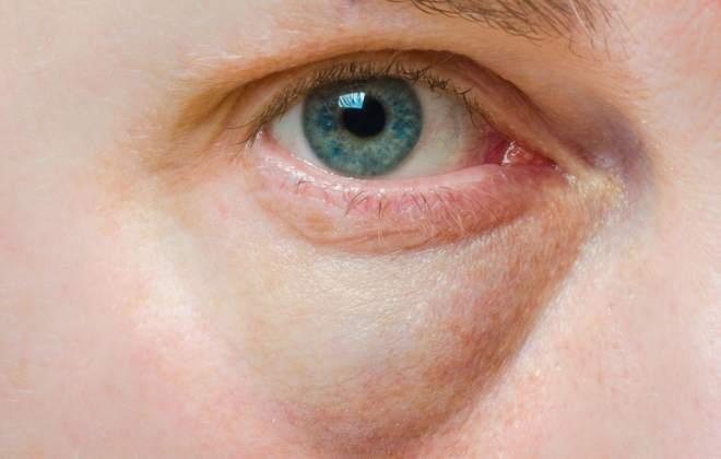 Опухший глаз при заболевании почек