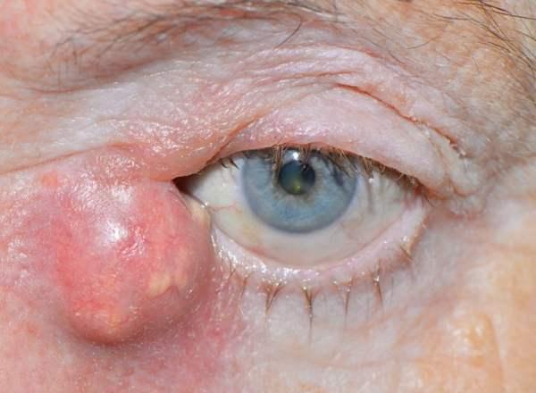Болезнь глаз дакриоцистит