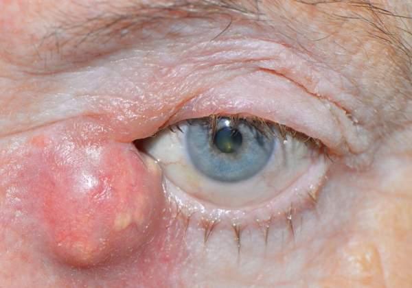 Опухший глаз при инфекции слезного канала