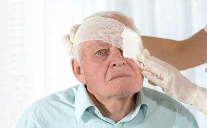 Защитная повязка на глаз после операции