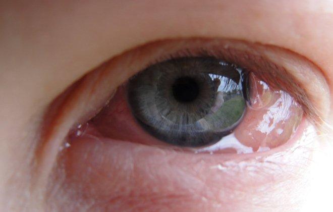 Отек глазного яблока