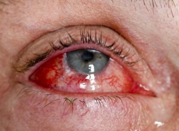 Болезнь глаз эндофтальмит