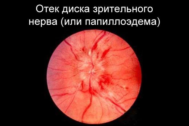 Отек диска зрительного нерва (папиллоэдема)