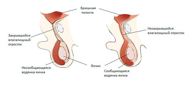 Врожденное гидроцеле (водянка яичка)
