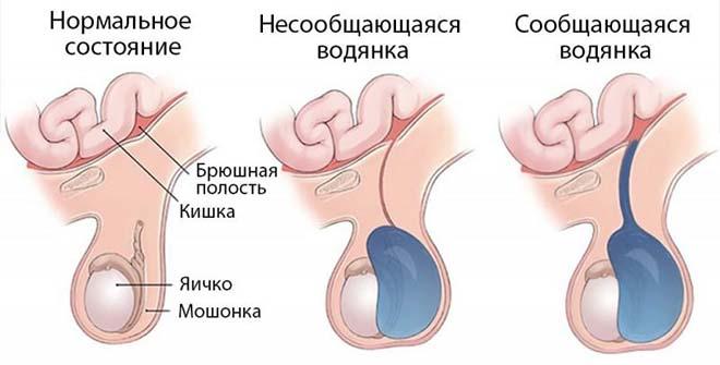 Водянка яичек