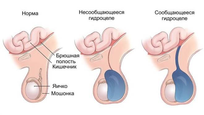 Сообщающееся гидроцеле