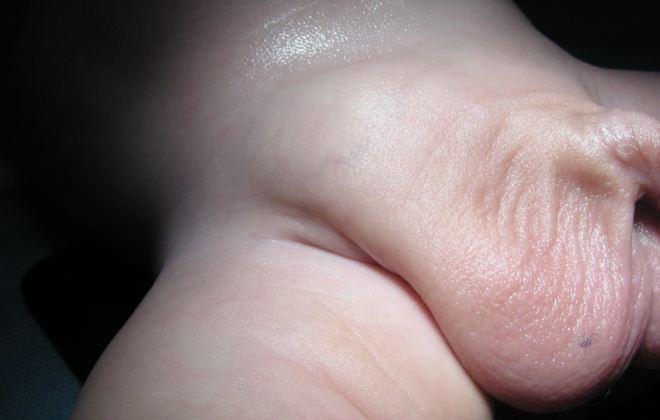 Врожденное гидроцеле