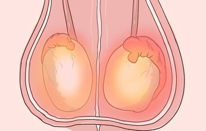 Может болеть левое яичко из за простатита прибор для лечения простатита в омске