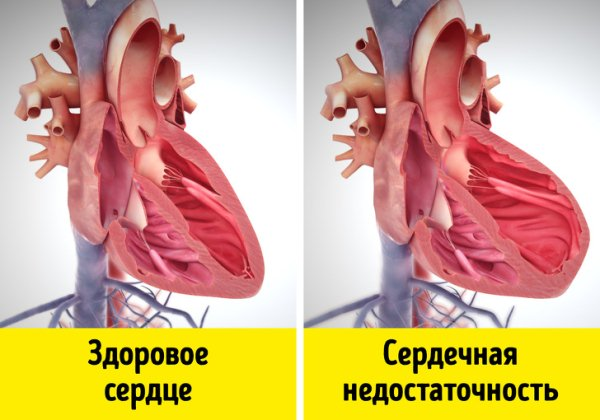 Сердечная недостаточность как причина водянки яичка