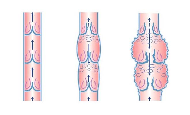 Нарушение кровотока в венах