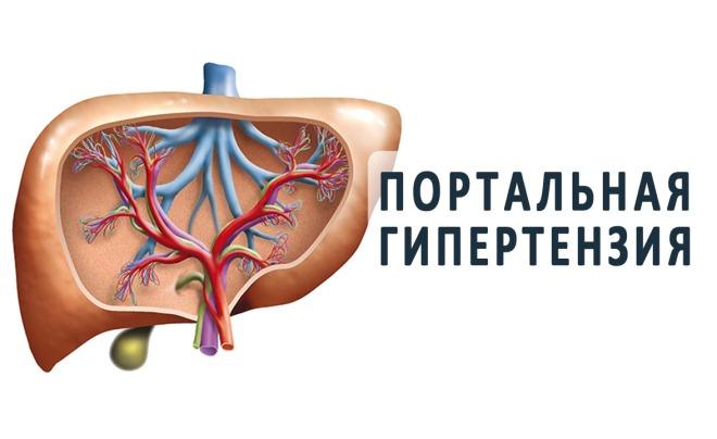 Портальная гипертензия как причина варикоцеле