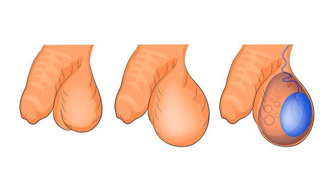 Симптомы гидроцеле