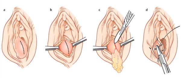 Удаление кисты бартолиновой железы