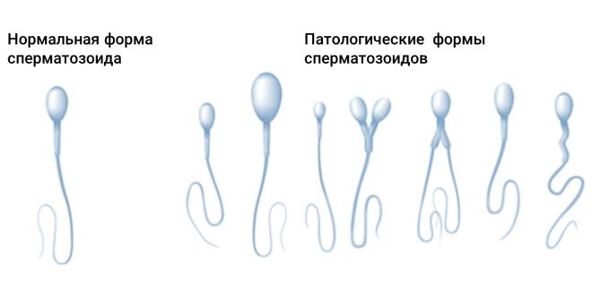 Деформация сперматозоидов при варикоцеле