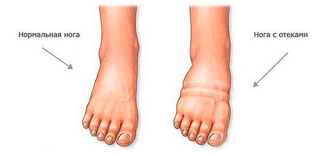 Отекшая и нормальная нога