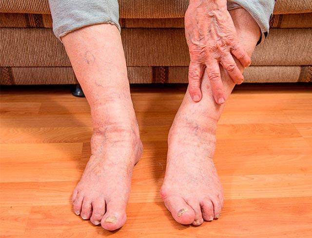 отек ног у пожилых