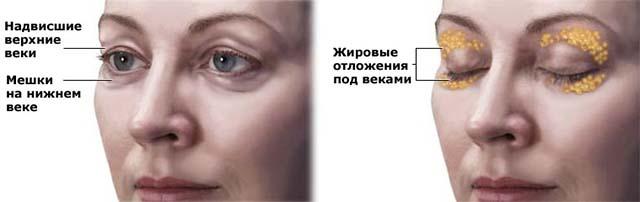 Жировой мешок над глазом