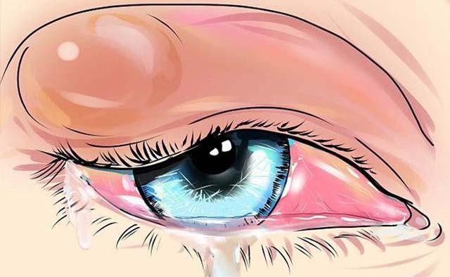 Гнойное воспаление глаз