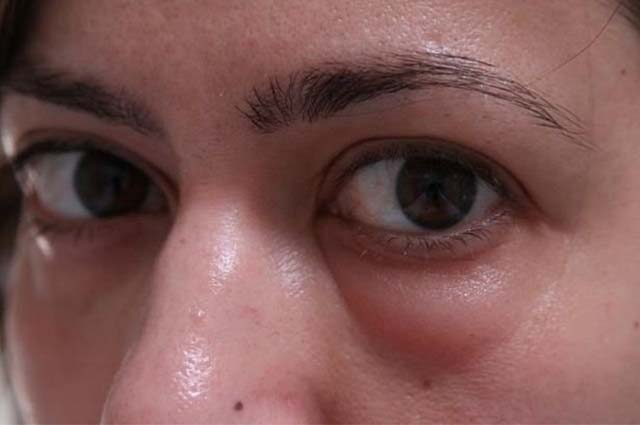 Мешок под глазом